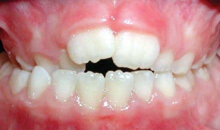 Crossbite of Back Teeth